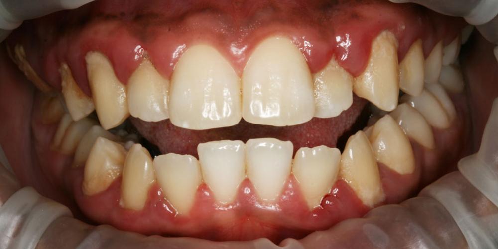 Черный налёт на зубах как избавиться в  263