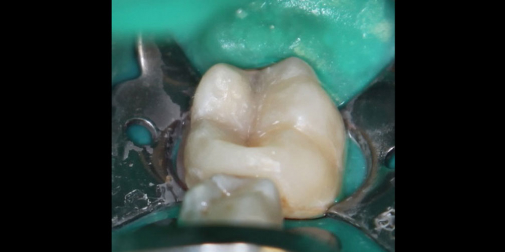 Результат лечения кариеса с восстановлением анатомической формы зуба