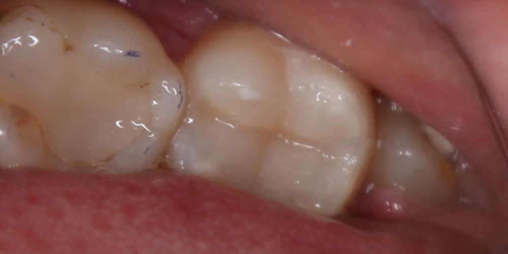 Лечение кариеса 37 зуба