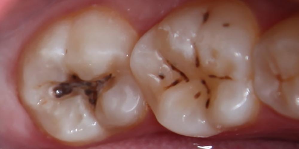 Лечение кариеса зуба 3.7