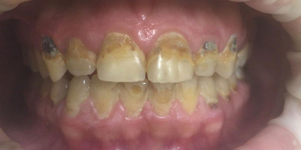 Реставрация 8 верхних зубов: резцов, клыков и премоляров