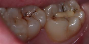 Лечение кариеса 47 зуба фото до лечения