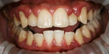 Результат профессиональной чистки зубов от темного налета фото до лечения