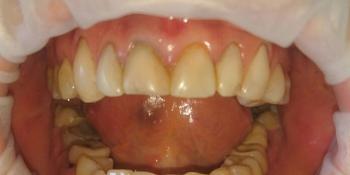 Преображение зоны улыбки керамическими винирами фото до лечения