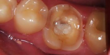 Керамическая вкладка зуба 3.6 фото до лечения