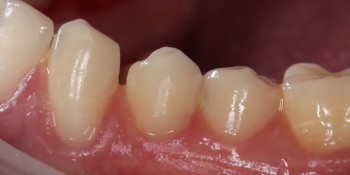 Лечение клиновидного дефекта 3-х зубов фото после лечения