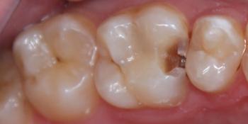 Кариозная полость на контактной поверхности зуба 2.6 фото до лечения