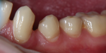 Лечение клиновидного дефекта 3-х зубов фото до лечения