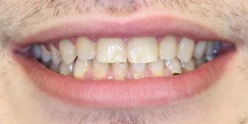 Реставрация 8 верхних зубов: резцов, клыков и премоляров фото после лечения