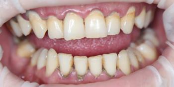 Результат профессиональной гигиены полости рта  фото до лечения