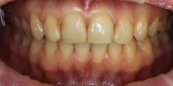 Керамические виниры из материала E.max фото до лечения