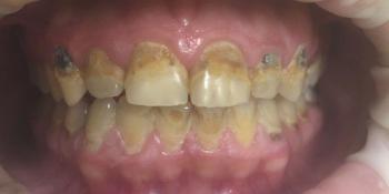 Реставрация 8 верхних зубов: резцов, клыков и премоляров фото до лечения
