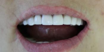 Преображение зоны улыбки керамическими винирами фото после лечения