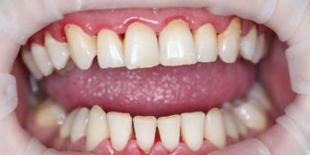 Результат профессиональной гигиены полости рта  фото после лечения