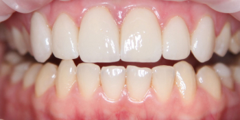 Керамические виниры из материала E.max фото после лечения
