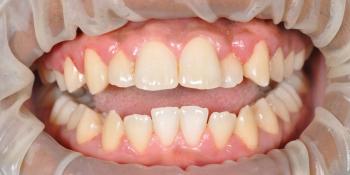 Результат профессиональной чистки зубов от темного налета фото после лечения