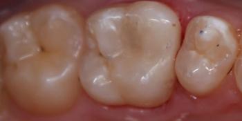 Кариозная полость на контактной поверхности зуба 2.6 фото после лечения