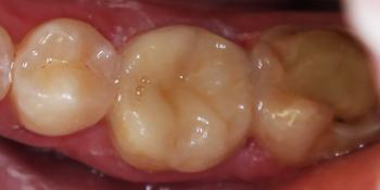 Керамическая вкладка зуба 3.6 фото после лечения